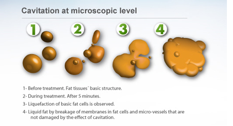 Asthma medicine fat loss picture 3