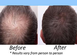 Hair Clinic In Hyderabad Hair Fall Treatment In Hyderabad